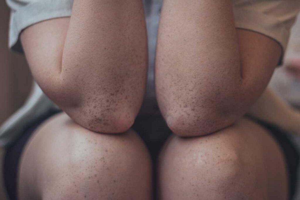 noisy-knees